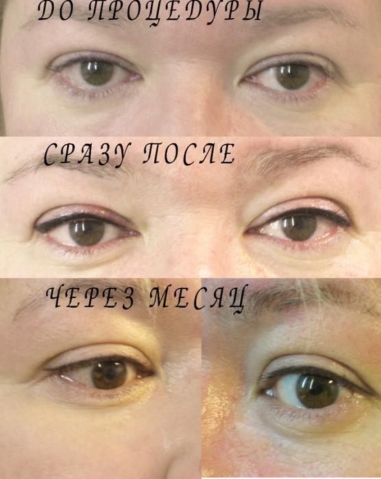 фото перманентный макияж на глазах, татуаж глаз, как выглядит татуаж глаз, как делают перманентный макияж глаз, зачем делать татуаж глаз, какие осложнения могут быть после татуажа глаз, Хьюго Пьюго отзыв о татуаже глаз, /4682845_veko_verhnee_0 (556x700, 274Kb)