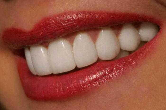 alt=Чем можно отбелить зубы?/2835299_ (700x466, 32Kb)