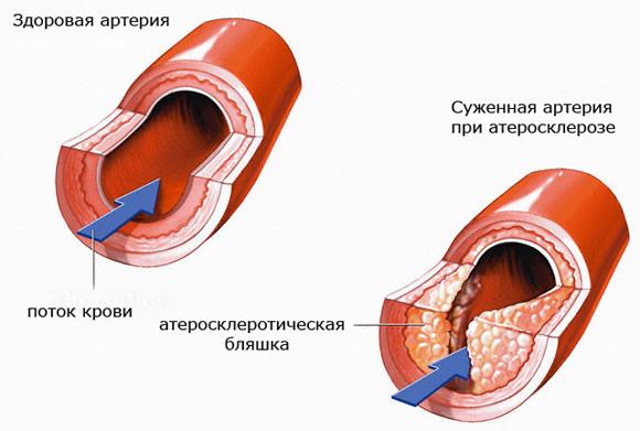 ateroskleroz (580x391, 144Kb)