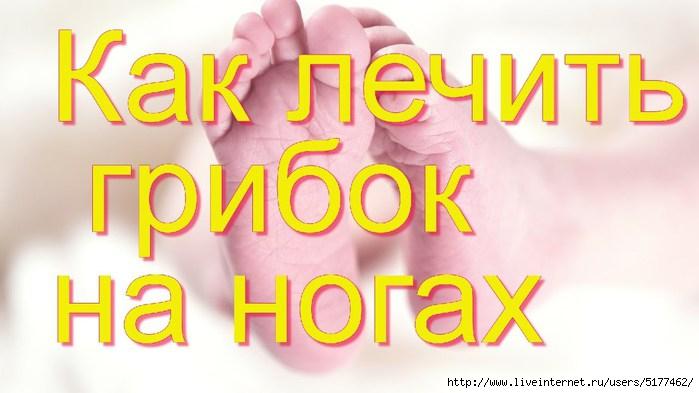 """2 thoughts on """"Intoxiс для лечения грибка ногтей и"""