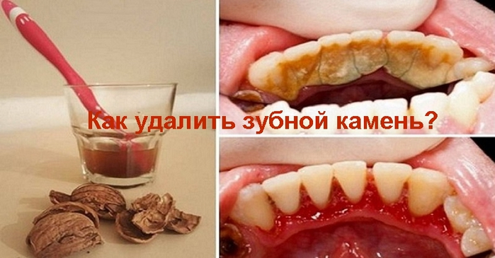 "alt=""Как удалить зубной камень?""/2835299_Kak_ydalit_zybnoi_kamen_ (700x365, 173Kb)"