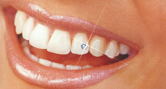 """alt=""""Сказка о белых сверкающих зубах""""/2835299__1_ (700x377, 69Kb)"""