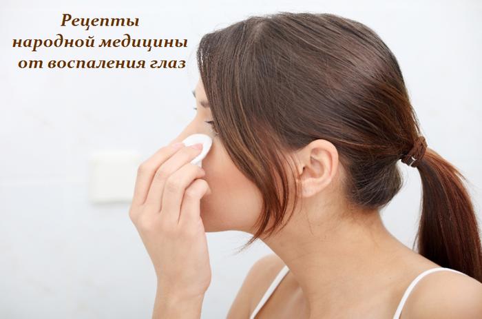 1458759227_Receptuy_narodnoy_medicinuy_ot_vospaleniya_glaz (700x463, 424Kb)