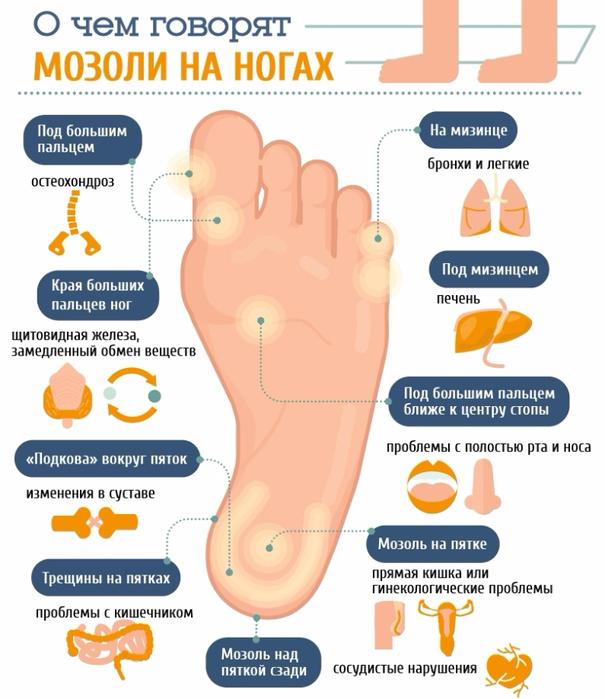 mozoli-na-nogah-i-bolezni (605x700, 292Kb)