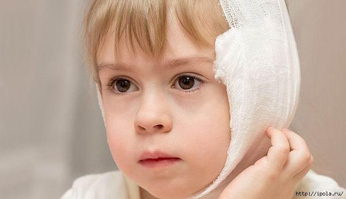 """alt=""""Как правильно сделать спиртовой компресс при отите на ухо ребёнку.""""/2835299_ (700x403, 80Kb)"""