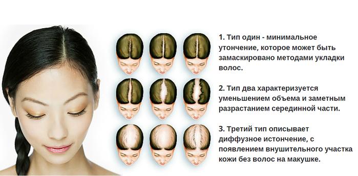 5651699_Bezimyannii (700x344, 253Kb)