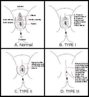 фото обрезание женских половых органов