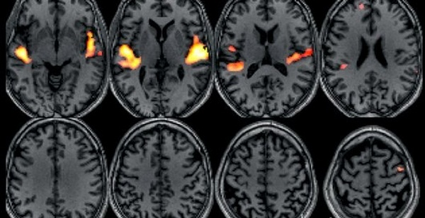 C0071660-Hearing_music-fMRI_brain_scan-SPL (600x308, 71Kb)