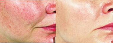 lechenie-kuperoza-na-lice-foto-do-i-posle (383x148, 54Kb)