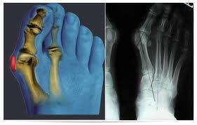 Во-вторых: не только уродует ноги, но и... Вальгусная деформация стоп.  Нужна ли операция?
