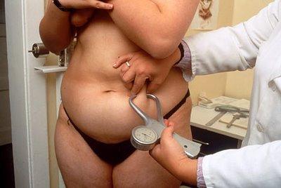 откуда жир на животе