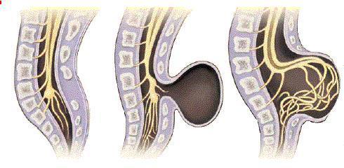 spina-bifidag (490x240, 26Kb)