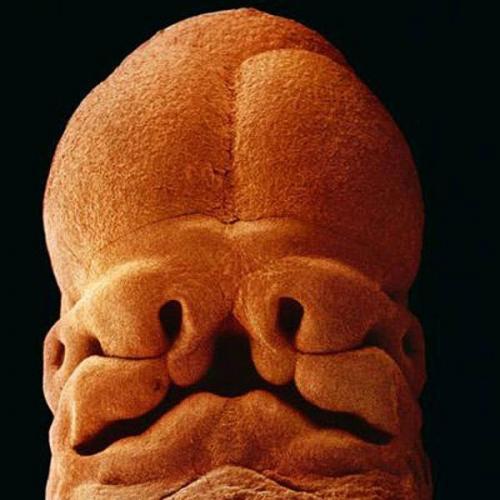 5 недель. Эмбрион, длина 9 мм, уже угадывается лицо с отверстиями для рта, ноздрей и глаз