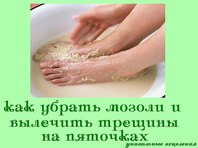 Как убрать сильные натоптыши на ногах в