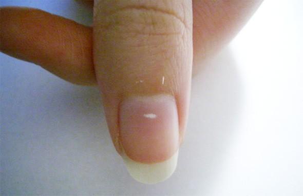 Что означают белые пятна на ногтях (590x382, 33Kb)