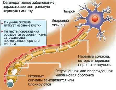 Рассеянный склероз (444x347, 45Kb)