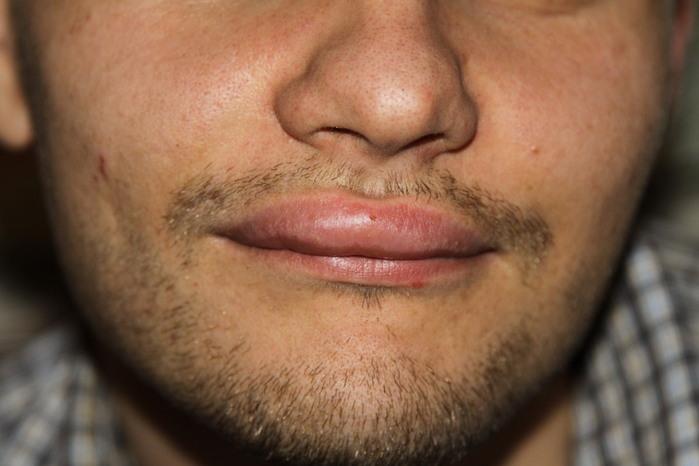 Раскусила губу опухла