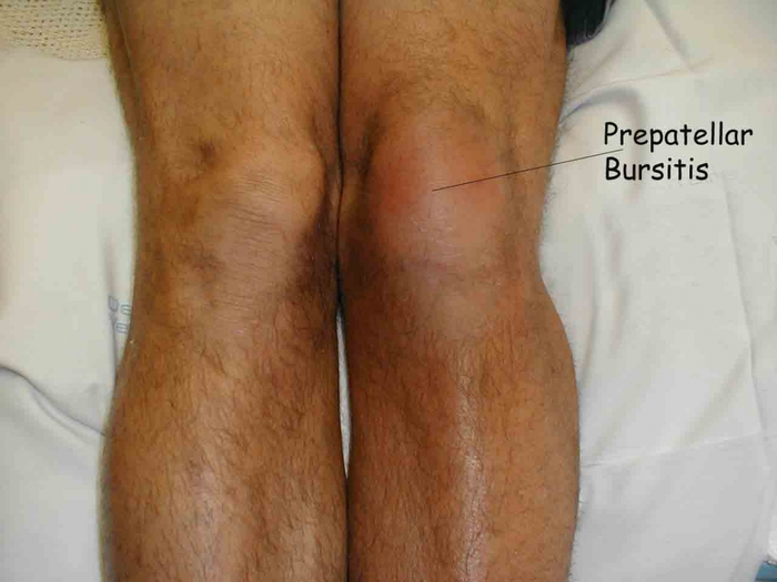4121583_knee_prepatellar_bursitis (700x525, 187Kb)