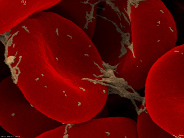 looking-at-the-world-through-a-microscope-red-blood-cells3 (605x454, 177Kb)