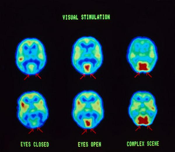 P3350001-Brain_and_vision-SPL (600x522, 300Kb)