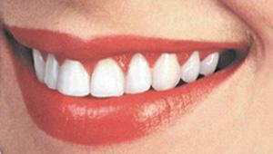 Зубы (300x170, 30Kb)