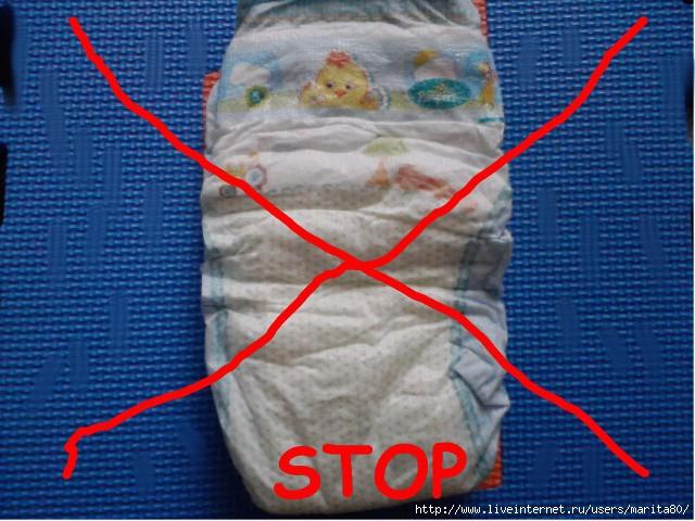 как выглядит аллергия на памперсы у ребенка фото