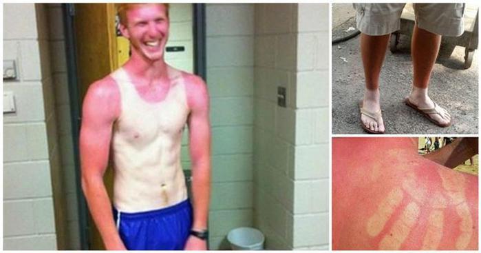 Фотографии 14 людей, забавно обгоревших на солнце