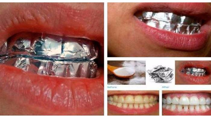 THIS-Is-What-Happens-When-You-Wrap-Your-Teeth-In-Aluminum-Foil-For-1-Hour (700x398, 207Kb)
