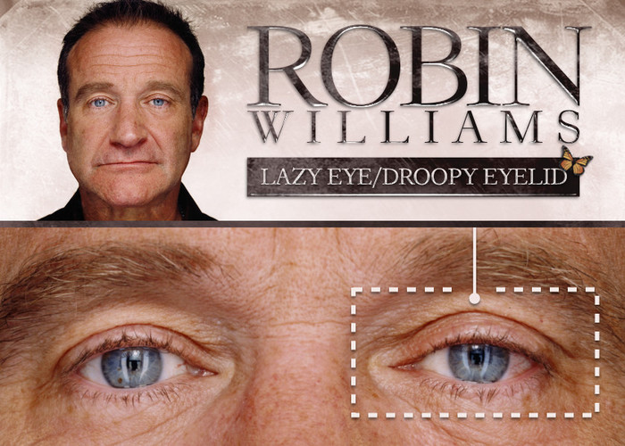 project-monarch-droopy-eyelid-robin-williams (700x500, 124Kb)