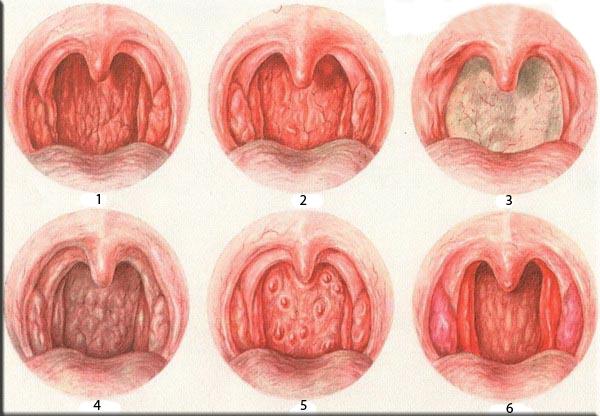 фото полости носа
