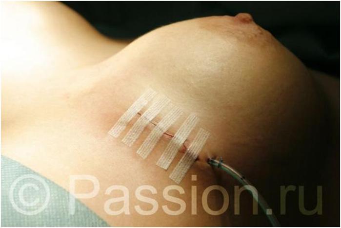 Увеличить грудь зарядкой в домашних условиях на 1 размер