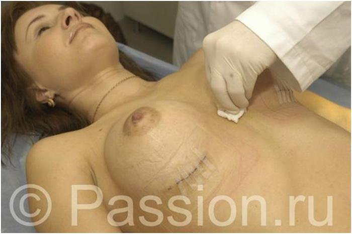 Здоровье. жесть. женщины. Смотрите также. Пластический хирург открыл тайн