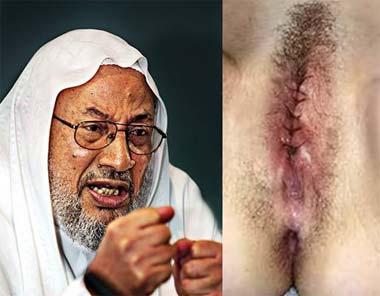 Порно арабски женские обрезание