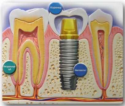 implanta (408x346, 88Kb)