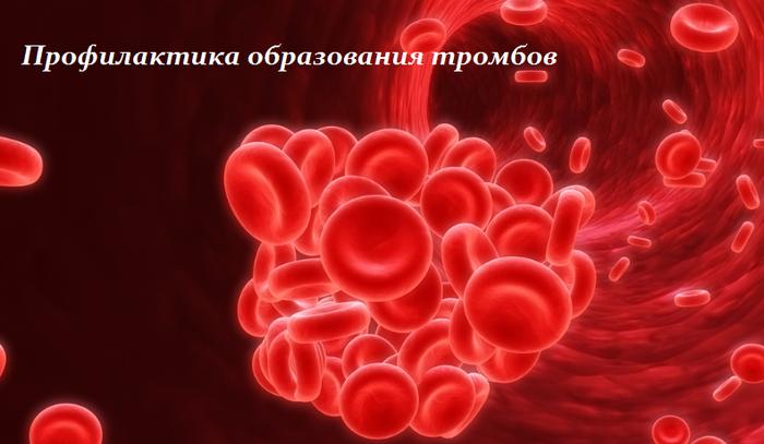 1435573845_profilaktika_obrazvaniya_trombov (700x407, 353Kb)