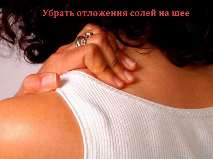 2835299_Ybrat_otlojeniya_solei_na_shee (700x523, 195Kb)