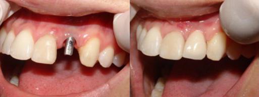 zubnie-implantati (513x192, 36Kb)