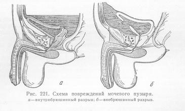 moch puzyr 34 (365x220, 57Kb)