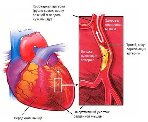 - -Г-- infarkt miokarda (500x412, 61Kb)