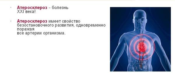 склероз (600x250, 29Kb)
