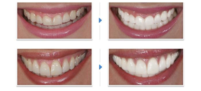 отбеливание зубов/1333056685_zubuy (700x318, 53Kb)