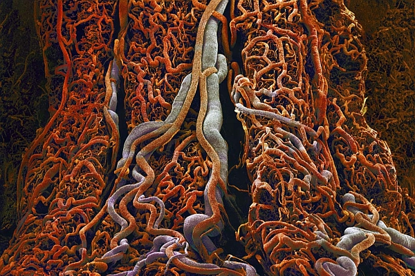 small-intestine-blood-vessels-e06073-lw (600x400, 288Kb)