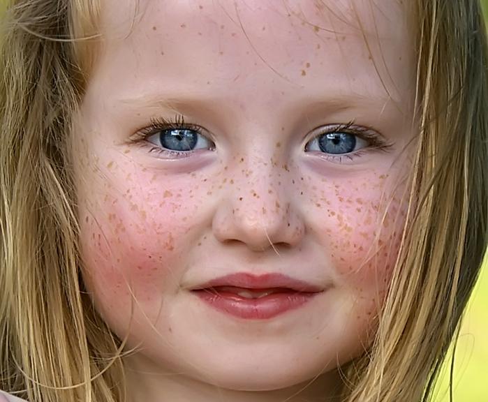 Отбеливание кожи в москве