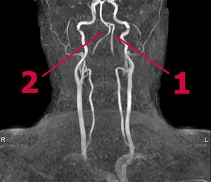 Народные средства лечения болей в стопе