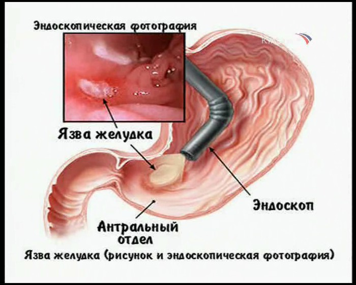 При каких заболеваниях кишечника выпадают волосы