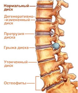 osteohondroz (250x298, 20Kb)