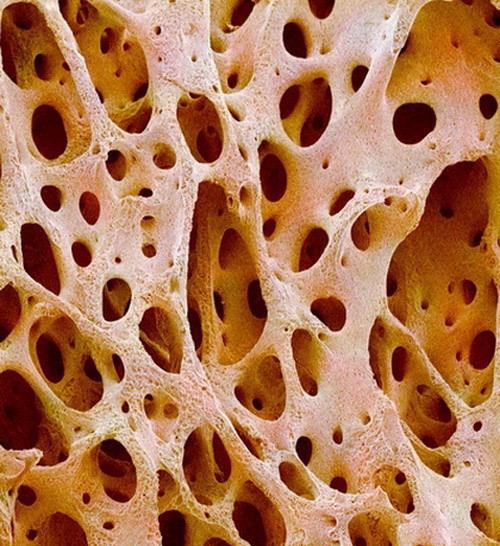 Фото качественной спермы под микроскопом 4 фотография