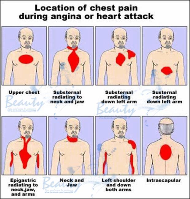 Симптомы и признаки сердечного приступа. Обсуждение на ...