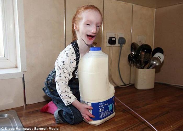 World s smallest girl 2012 best