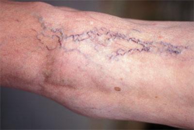 болезни ног (400x269, 17Kb)